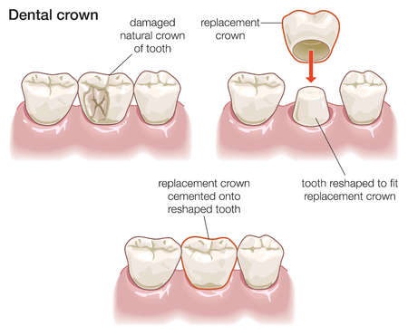 dental crowns Image