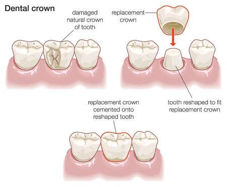 dental crowns Image