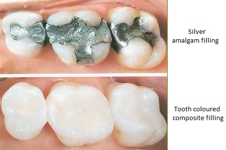 dental fillings Image