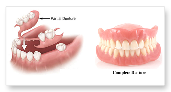 partial and complete dentures Image