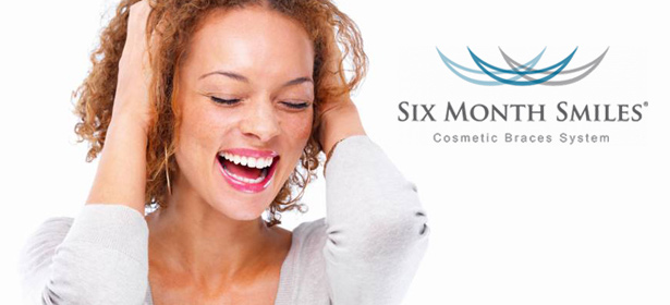 six-month-smiles-cosmetic-braces-laugh Image