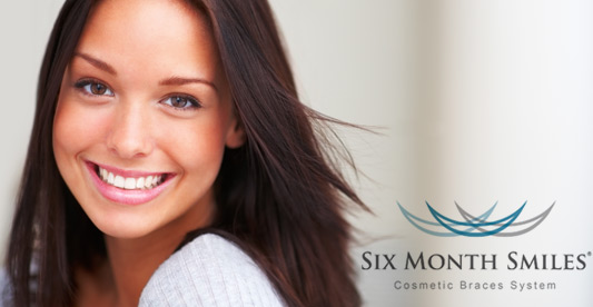 six-month-smiles-cosmetic-braces Image