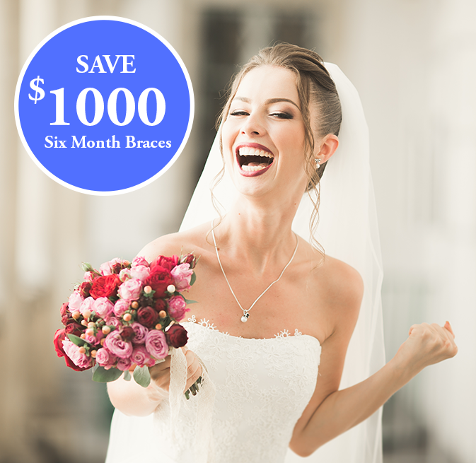 six-month-smiles special 1000 OFF Image
