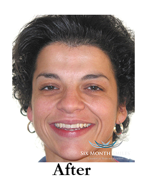 six-month-smiles-cosmetic-braces Image four after
