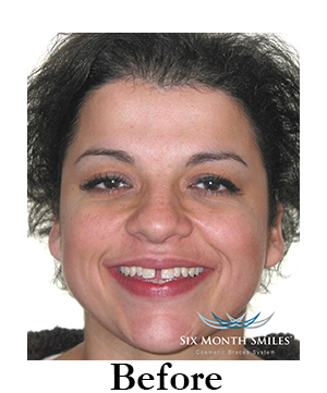 six-month-smiles-cosmetic-braces Image four before