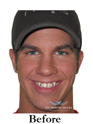 six-month-smiles-cosmetic-braces Image one before