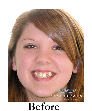 six-month-smiles-cosmetic-braces Image three before