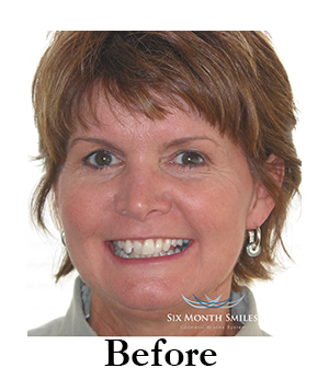 six-month-smiles-cosmetic-braces Image two before